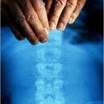 chiropractor-massage_1